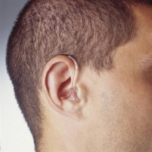 appareil-auditif